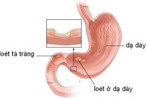 dạ dày trần kim huyền