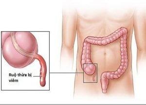 Rượu xoa bóp xương khớp Trần Kim Huyền
